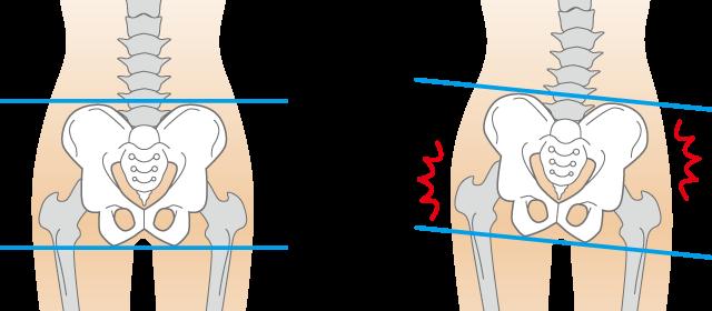 骨盤周囲の歪みのイメージ